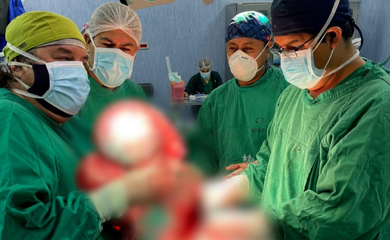 En La Libertad EsSalud extirpa enorme tumor uterino de 15 kilos a mujer de 50 años.